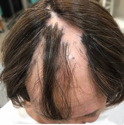High-quality, non-surgical hair replacement